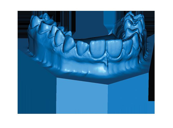 skan 3d stomatologia